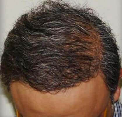 After Treatment for Severe Male Baldness - Dr U Hair and Skin Clinic
