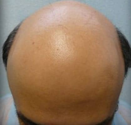 Severe Male Baldness - Dr U Hair and Skin Clinic