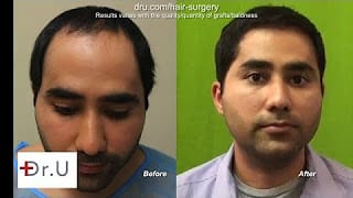 Dr. Umar Patient Sees Norwood 1 Full Hair Restoration Using Body hair grafts - Before and After Photos