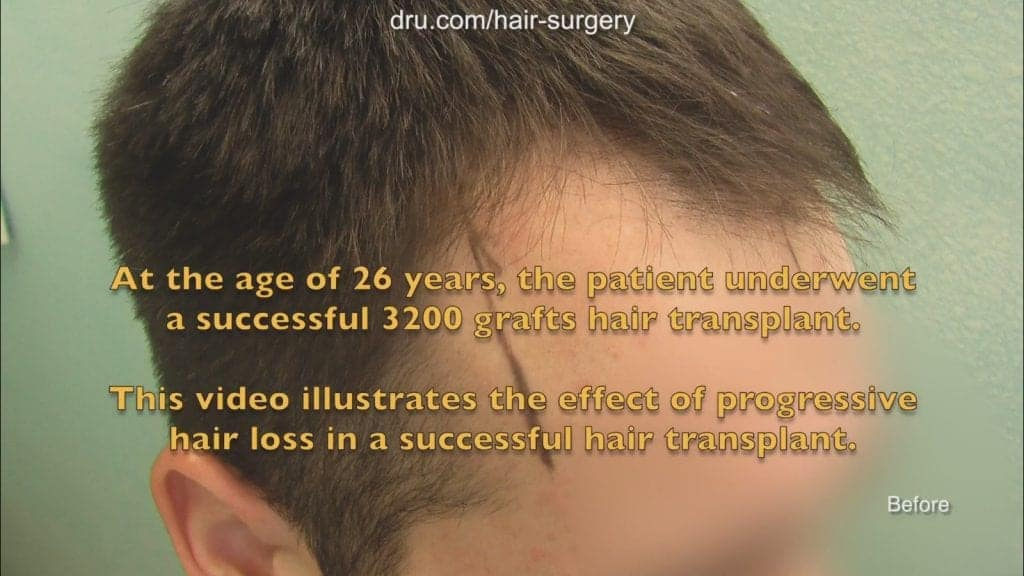 Do hair transplants last?: Patient before treatment by Dr. Umar