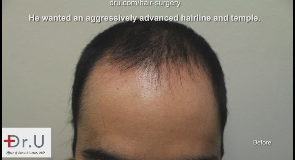 The patient experienced a receding hairline and loss of temple coverage before seeing Dr. Umar
