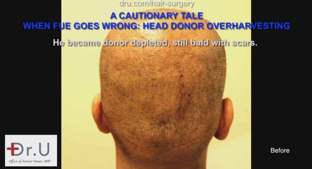 The patient experienced hair loss and scarring from a botched previous procedure