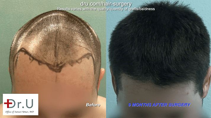 Photo shows area of onset of Hair Loss After Hair Transplant.
