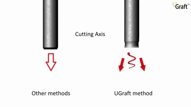 The Dr.UGraft™ technology can repair bad hair transplant results through a uniquely designed flared hybrid punch that cuts away from follicles. This makes it easier for surgeons to safely remove a greater number of healthy grafts from both the head and body regions to perform a successful hair transplant reparative surgery.