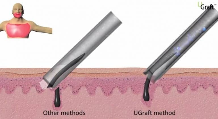 The Dr.UGraft method restores an entire head of hair through many key features. The Dr.UPunch Rotor uses punches with inner and outer threading that, by design, pulls the tissue around follicles oriented at any angle. However, regular methods will slice through follicles with sharply angled hair.
