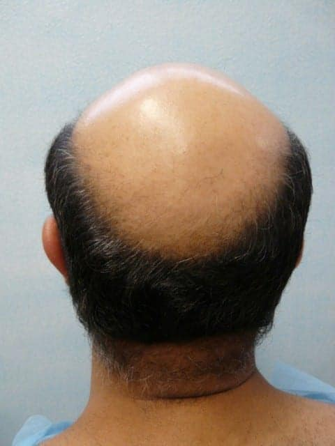 Heredity causes most hair loss in men. Doctors hope to one day develop a hair loss cure.