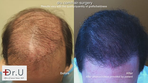 Before and After: strip surgery hair transplant repair with the Dr.UGraft
