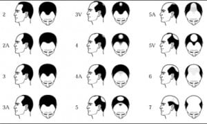 Hair loss causes: The Norwood-Hamilton Scale