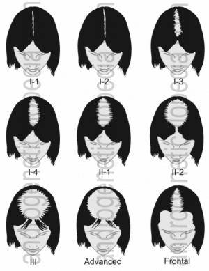 Hair loss in women: the Savin Scale