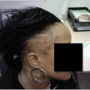 African american hair loss as a result of traction alopecia