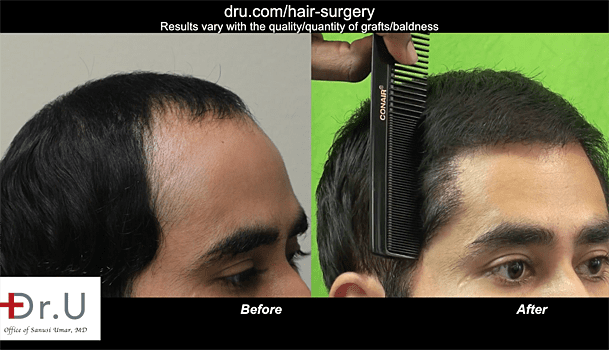 Fix hair loss with body hair transplant: Before and After the Body hair transplant with no visible scarring