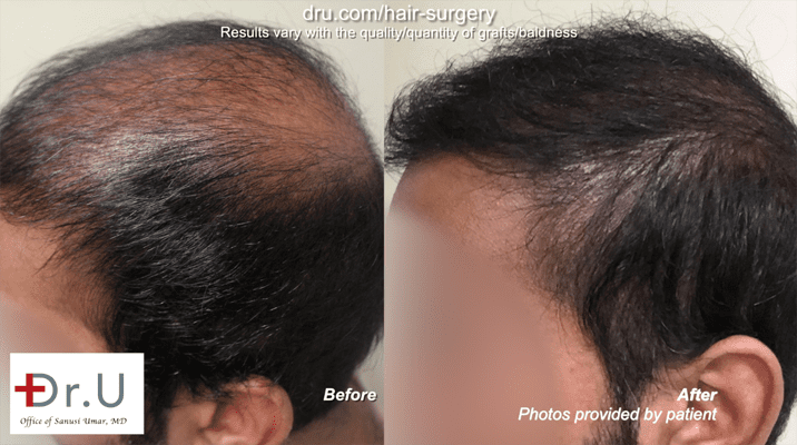 Before and after Hair transplant repair using beard and chest hair