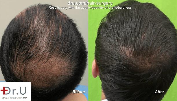 Full Hair Restoration with Body Hair: Body hair transplant success