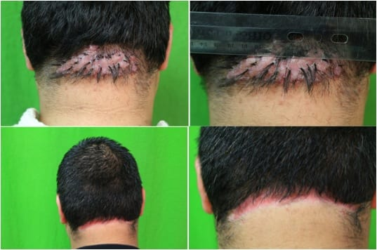 Even with a big bump on back of head, surgical removal changed this patient's life.*