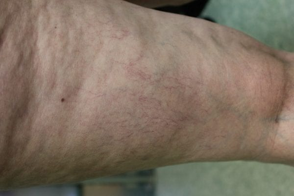 An example of telangiectasia varicose spider veins on legs before treatment.