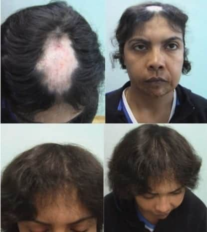 Female baldness can results from a number of conditions, including genetics, hormones, or damage to hair follicles