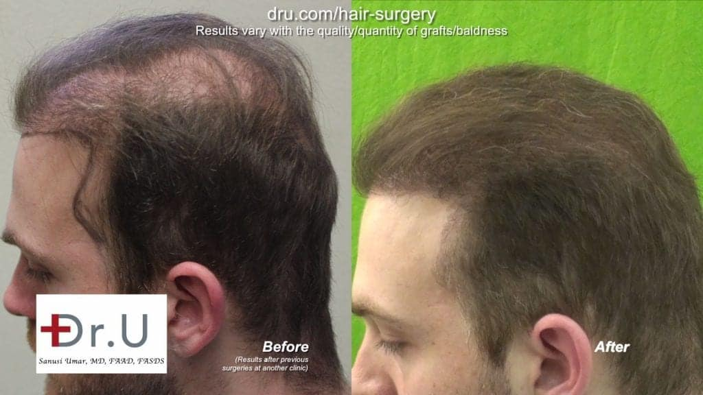 Successful Hair Transplant Repair of Strip Surgery