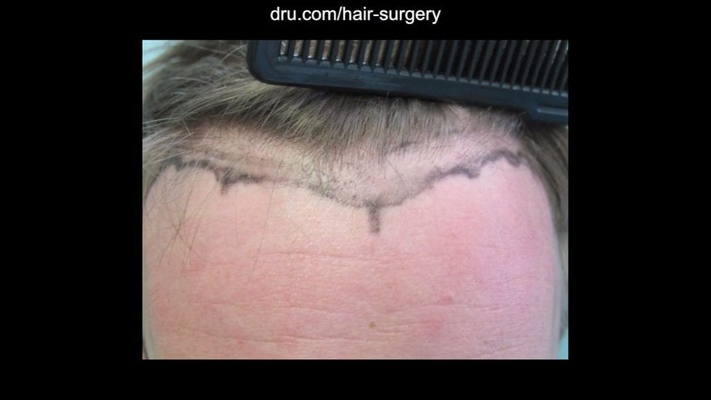 Dr. Umar worked to develop the preferred look with the patient.