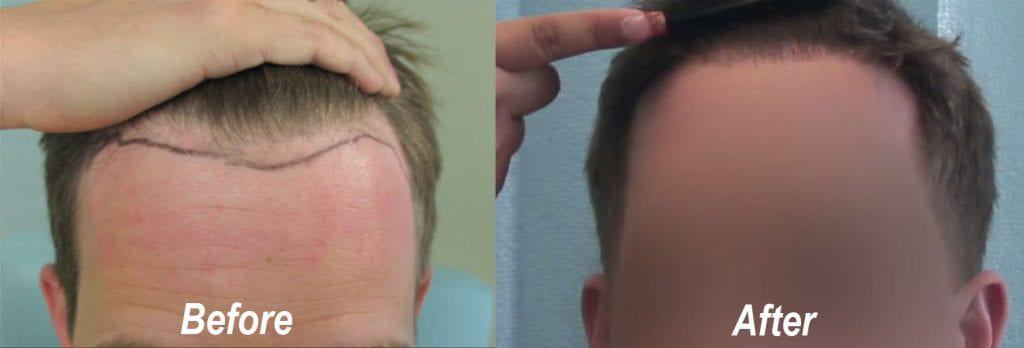 The hairline on this patient of Dr. U was lowered only a little, but made a significant difference.*