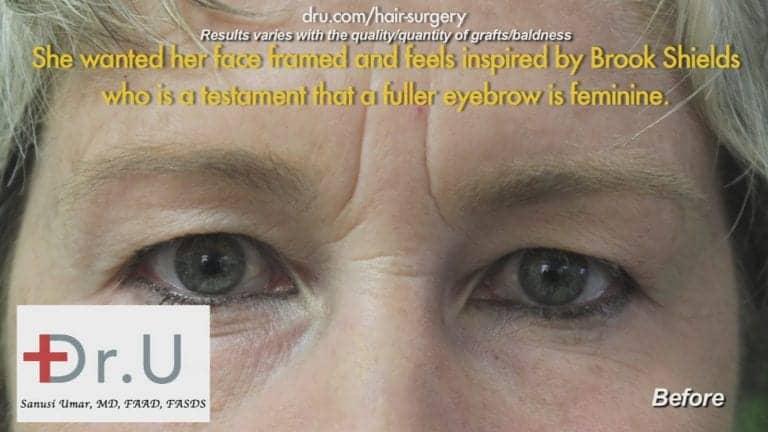 Before Eyebrow Hair Loss Treatment: Loss of hair before Dr.UGraft