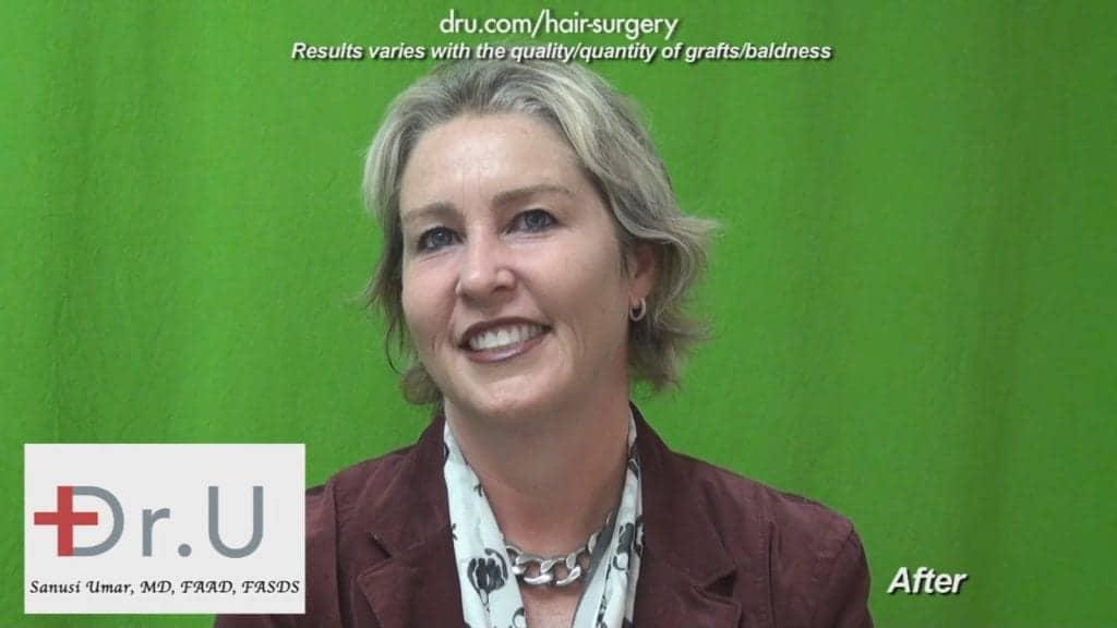 Dr UGraft Surgery For Eyebrow Hair Loss Treatment Achieves Brook Shields Eyebrow Look