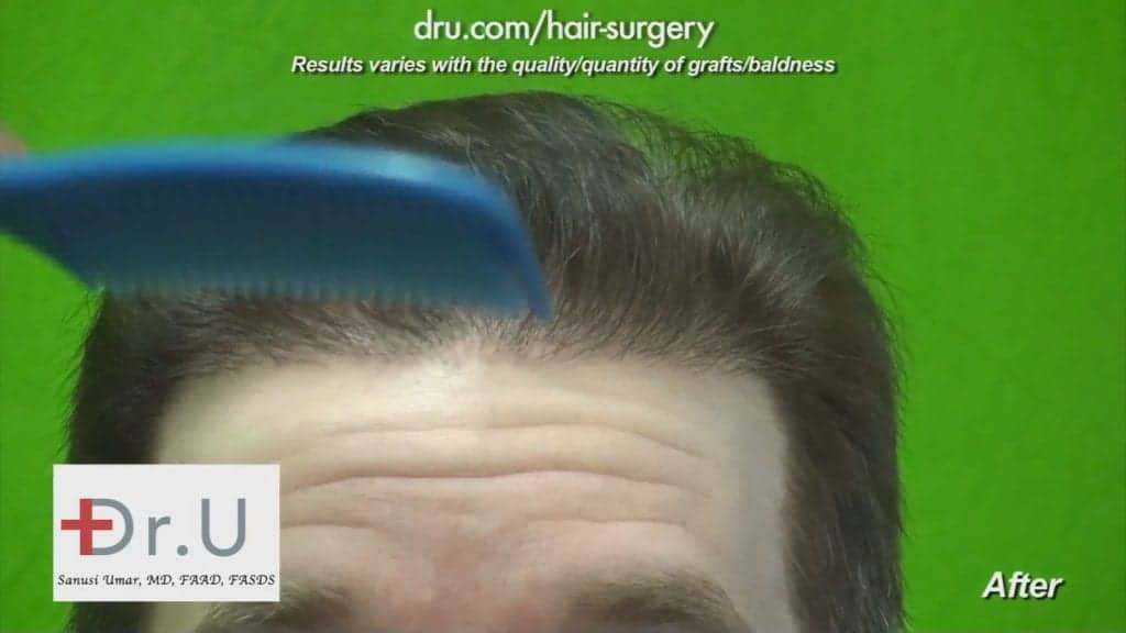 Repair Multiple Hair Transplant Surgeries: DrUGraft FUE Restores hair after botched surgeries with 12500 Dr.UGrafts