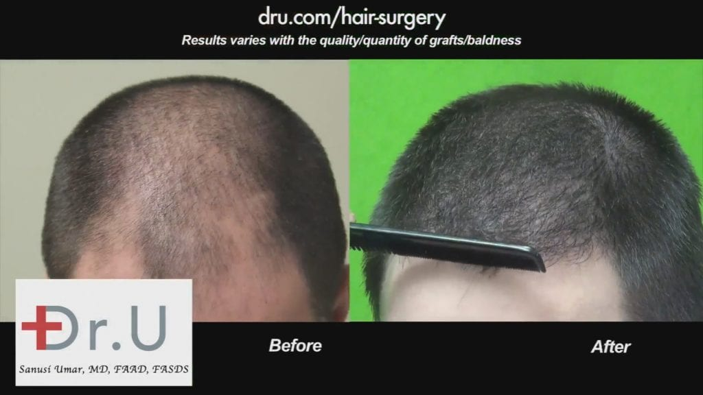 Understanding Hair Transplant Surgery Through Research