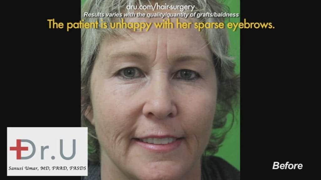 Dr.UGraft Results of Repair of Multiple Hair Transplant Surgeries