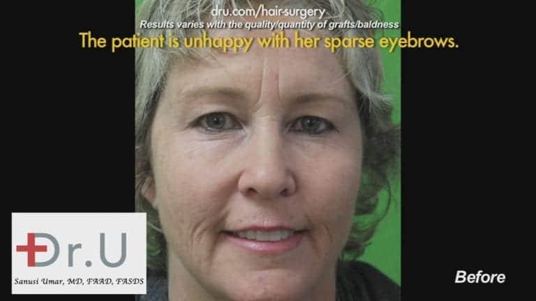 Before Dr.UGraft Eyebrow Hair Loss Treatment