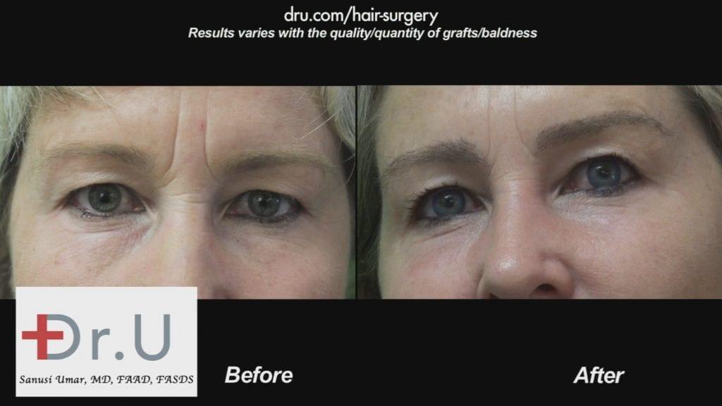 Dr.UGraft to Fix prior hair transplants