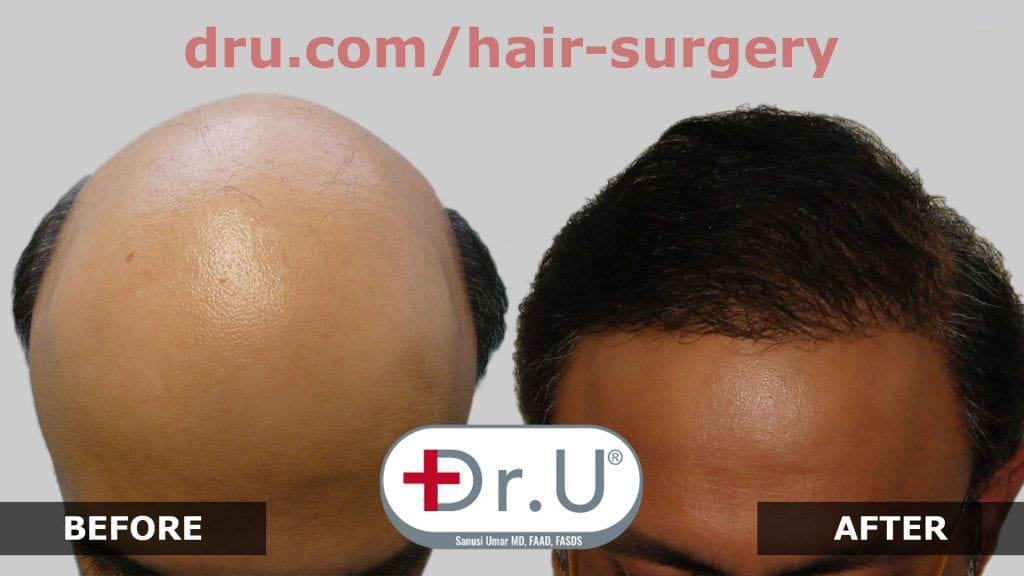 After being labeled a lost cause, this patient receives a full NW 7 Hair Restoration in Los Angeles with Dr. Umar using his Dr.UGraft.