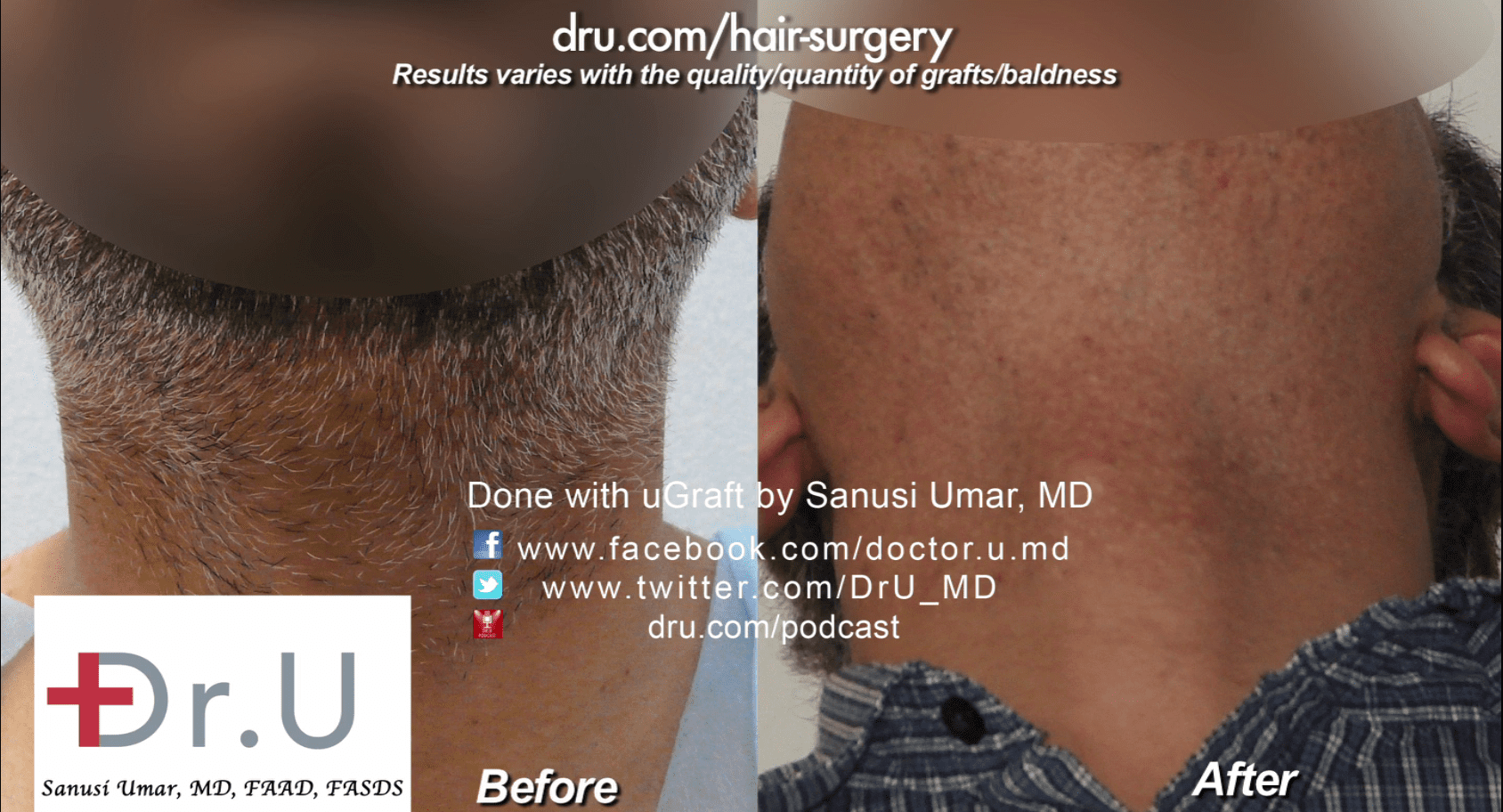 Dr. Umar used 4000 beard grafts for this procedure.*