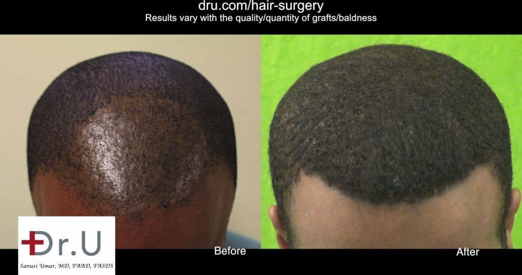 VIDEO: Dr UPunch CURL for Successful African Hair Follicular Unit Extraction - Thumbnail