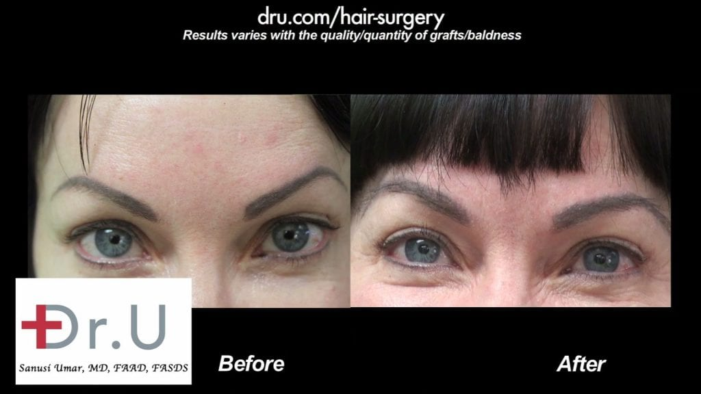 Eyebrow Hair Transplant Covers Eyebrow Tattoo Using Dr UGraft In Los Angeles Patient Before and After Photos