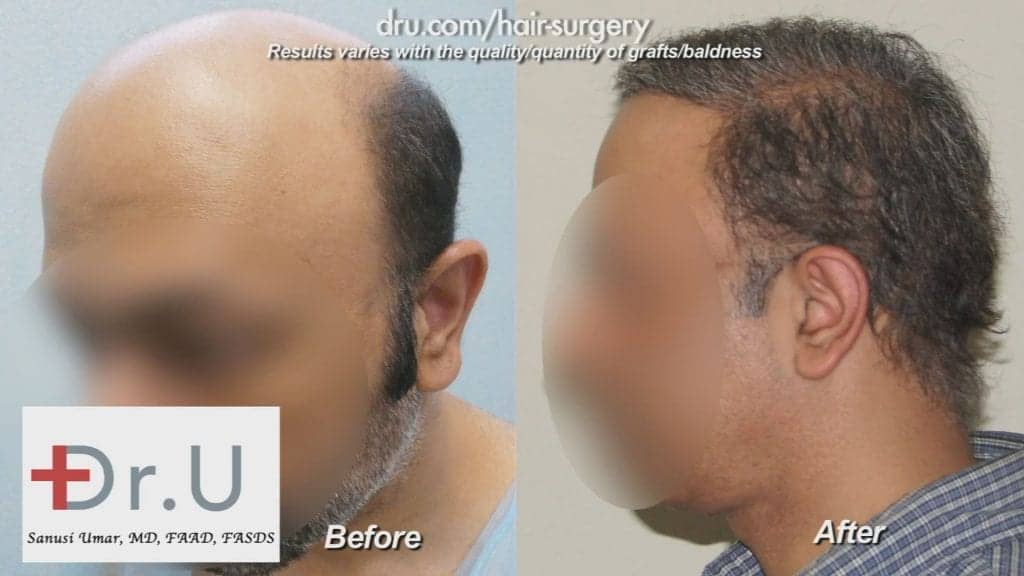 The NW7 Hair Transplant used grafts from the head and beard