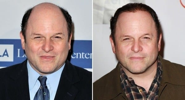 Celebrity Jason Alexander attempts the toupee look.