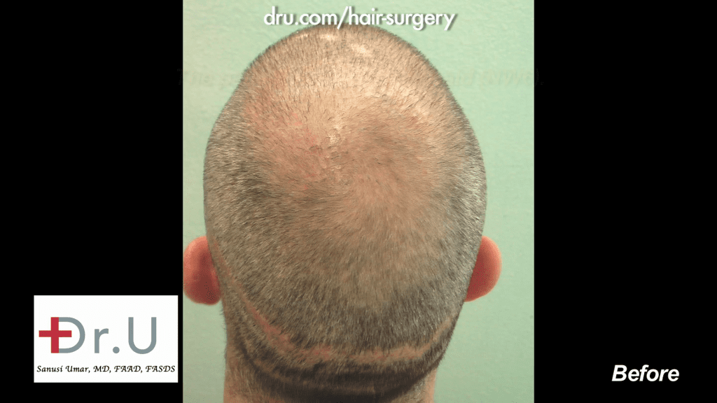 NW6 Baldness prior to being corrected with 13,500 Grafts