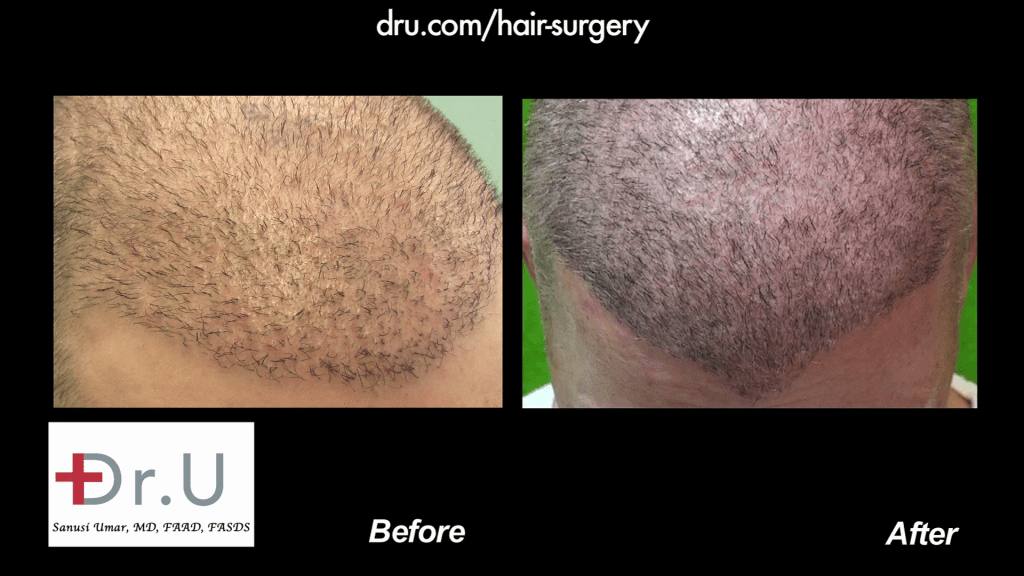 Body Hair Transplantation Restores Thinning Hairline in Males: Before and After DrUGraft