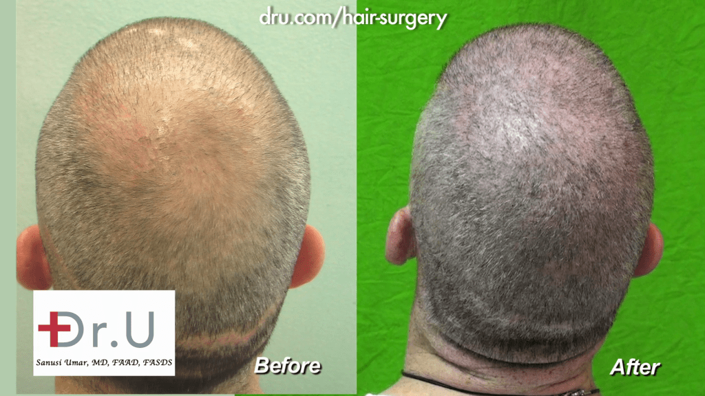 Dr UGraft Body Hair Transplantation Restores NW6 Thinning to NW 0 For A Buzz Cut before and after 13,500 Grafts
