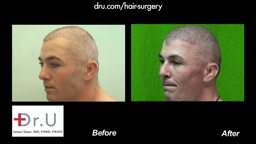 Before and after body hair transplantation restores thinning NW 6 For a Buzz Cut