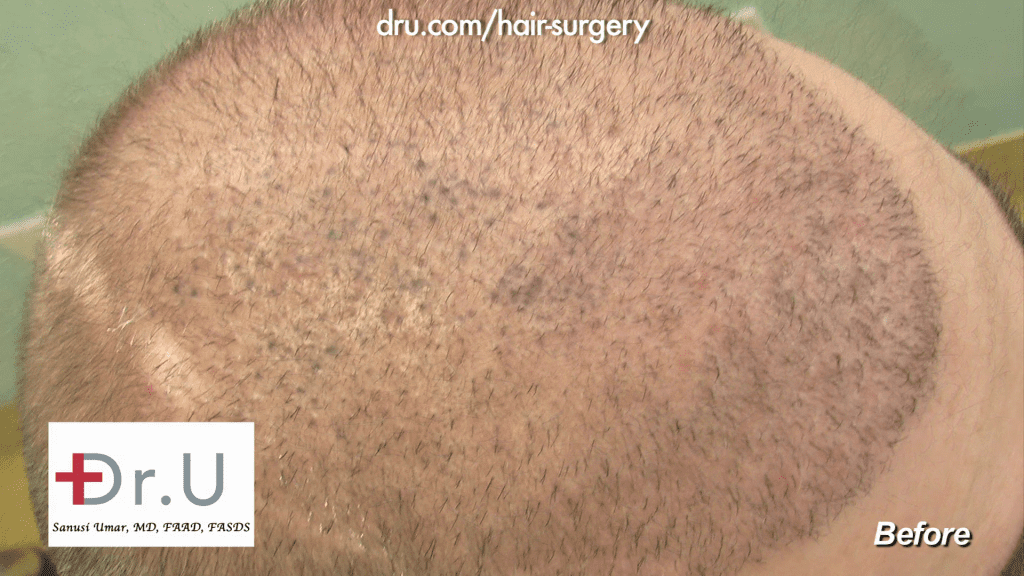 Top of patient's head depicting NW6 Baldness (eventually corrected with 13,500 DrUGrafts)
