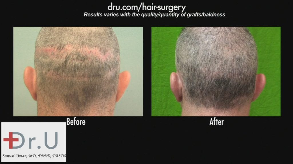Hair Transplant Scar Revision: Before and After - dramatic difference