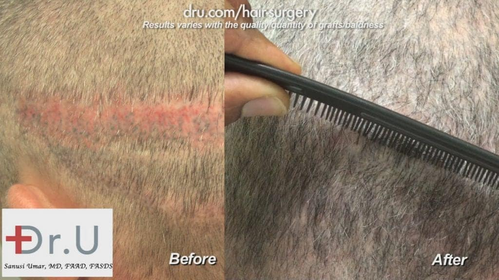 FUE hair transplant from beard: Hair transplant scar revision before and after