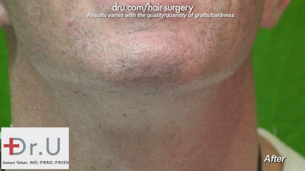FUE hair transplant from beard: The Dr.UGraft procedure left the patient with little to no trace of scar tissue or wounds.