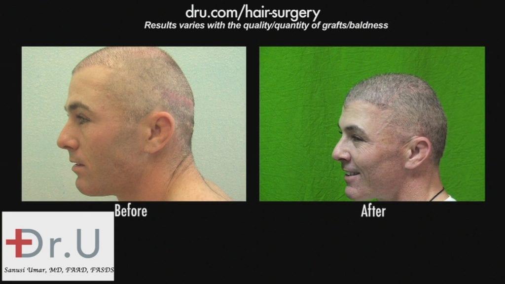 Hair transplant scar cover up using FUE using beard hair
