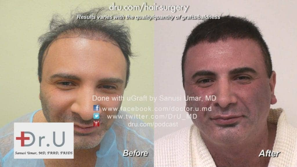 Hairline before and after repair with body hair transplant