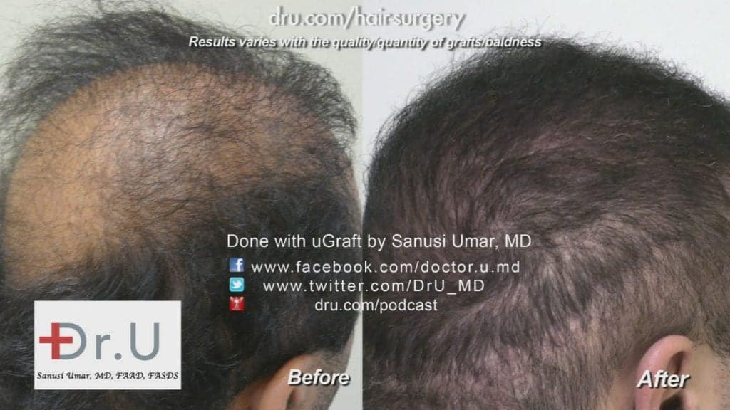Before and after Dr.UGraft: the patient's crown