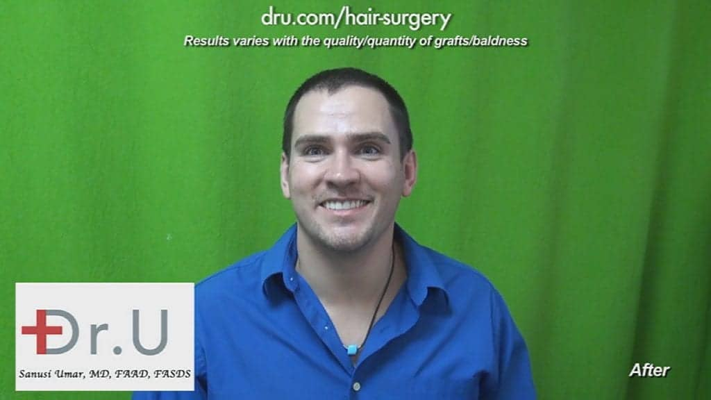 This patient is very happy with his hair transplant surgery results by Dr. Umar in Los Angeles.