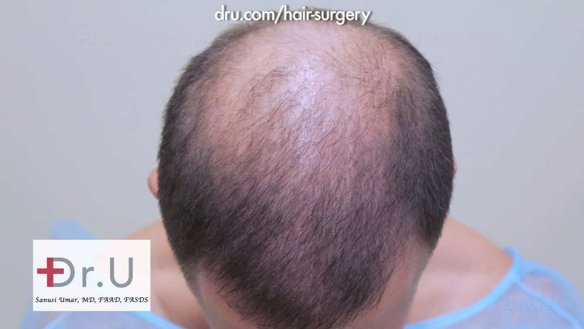 Video Severe Hair Loss Hair Transplant Dr U Hair Restoration Clinic Los Angeles Ca