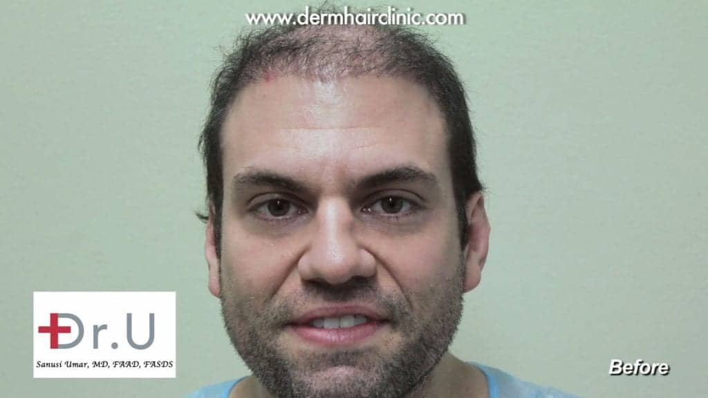 A before photo of a patient before his reparative hair transplant surgery from Dr. Umar.